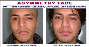 asymmetry face