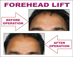 Fore head lift