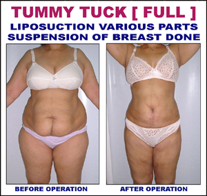 liposuction various-parts suspension of breast done
