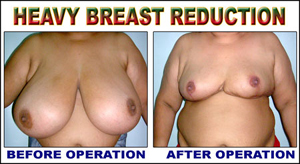 Heavy Breast Reduction