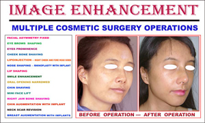 Multiple Cosmetic Surgery Operations