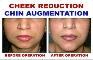 Cheek Reduction