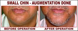 Small Chin Augmentation