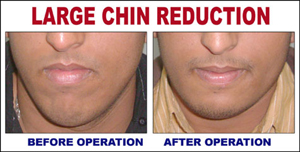 Large Chin Reduction