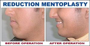 Reduction Mentoplasty