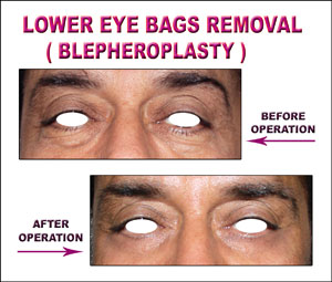 Lower Eye Bags Removal