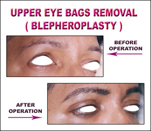 Eye Bags Removal