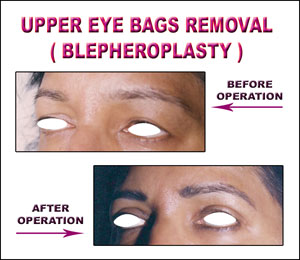 Upper Eye Bags Removal