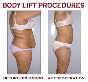 body lift procedores