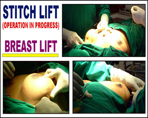 Stitch Lift for Breast