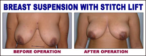 Breast Suspension With Stitch Lift