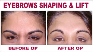 Eyebrows Shaping & Lift