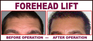Stitch Lift For Fore Head